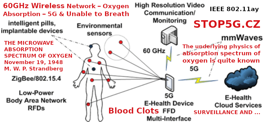 Blood Clots – Inability to Breathe and 60 GHz – THE MICROWAVE ABSORPTION SPECTRUM OF OXYGEN  – November 19, 1948 – 5G Genocide